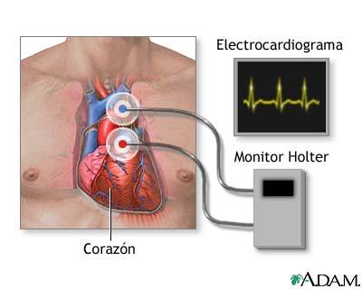 Un Holter en el corazón